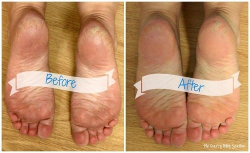 a before and after of a pair of feet after a listerine foot soak