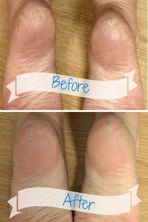 a before and after picture with a foot soak recipe with listerine