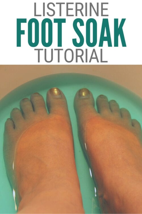 title image for Does the Listerine Foot Soak Really Work?